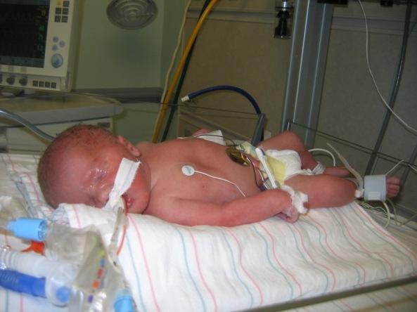 Isaac Intubated